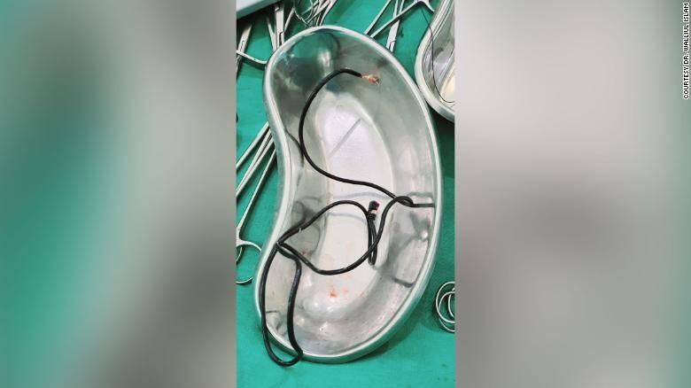 pene-cargador-de-celular-cirugia22-1